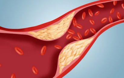 Cholesterol cao – Triệu chứng và cách nhận biết