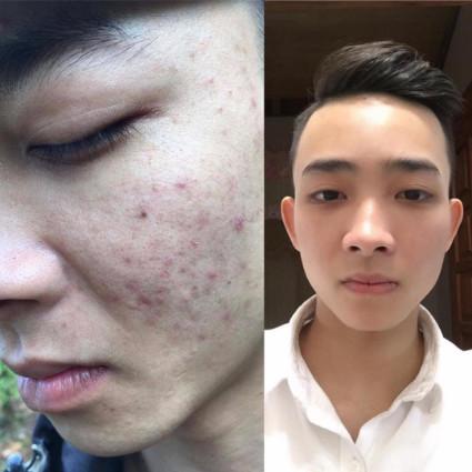 anh-thang-su-dung-skin-fresh