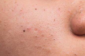 Mụn đầu đen là gì? Nguyên nhân và cách điều trị
