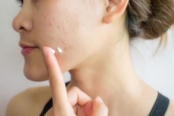Những cách tốt nhất để thoát khỏi sẹo mụn