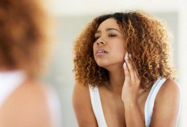 10 phương pháp khắc phục tại nhà để thoát khỏi mụn đầu trắng