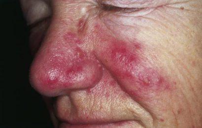 Nguyên nhân gây mụn trên mũi và làm thế nào để điều trị?